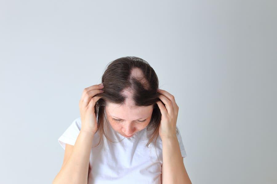 Kreisrunder Haarausfall auf dem Kopf einer Frau