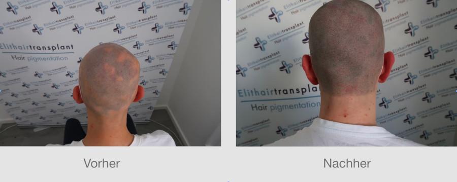 Kreisrunder Haarausfall bei einem Patienten auf dem Kopf