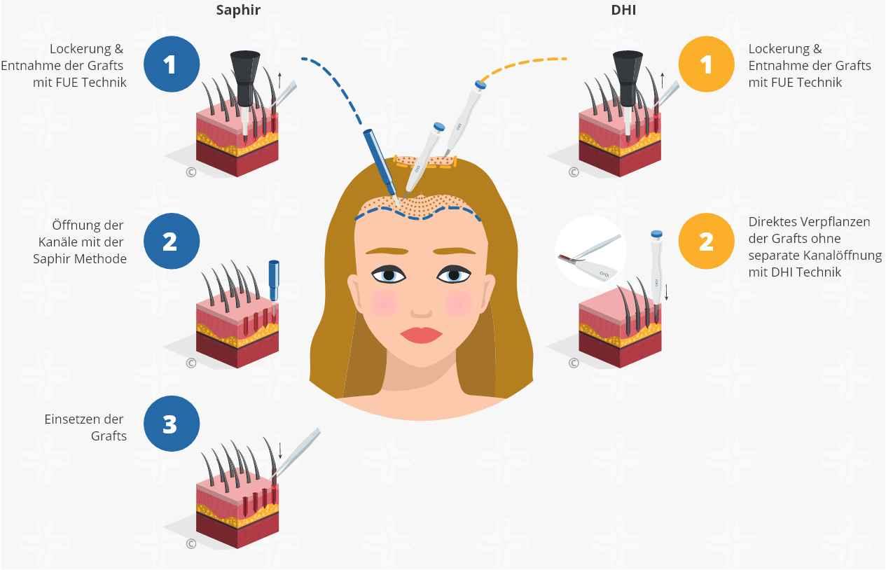 Infografik über den Prozess einer SDHI Haartransplantation