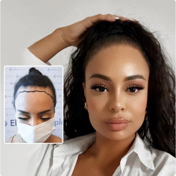 Die Haartransplantation bei Frauen ist ideal um den Haaransatz zu korrigieren