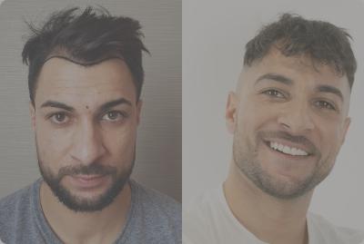 Osmani berichtet über seine Erfahrung bei seiner Haartransplantation