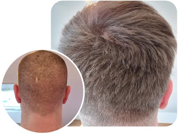 Patient nach Elithair FUE Haartransplantationstechnik mit 3100 Grafts