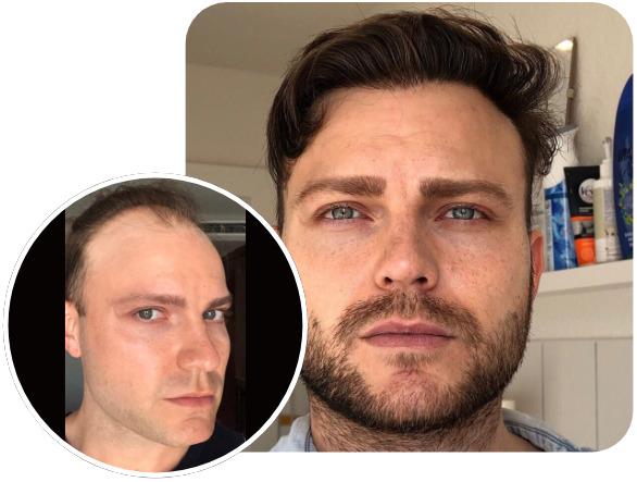 Patient nach Elithair FUE Haartransplantationstechnik mit 3700 Grafts