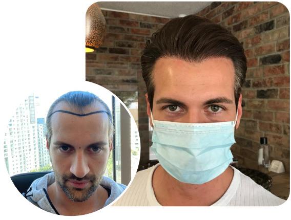 Patient nach Elithair Saphir Haartransplantationstechnik mit 3800 Grafts