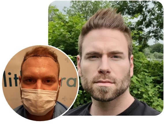 Patient nach Elithair Saphir Haartransplantationstechnik mit 4000 Grafts