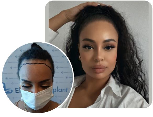 Patient nach Elithair SDHI Haartransplantation mit 3200 Grafts