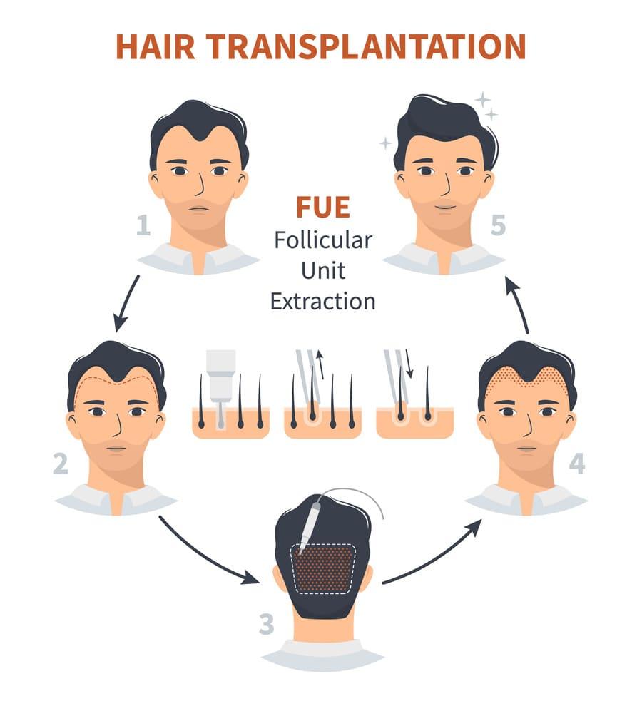 Grafik zum Ablauf einer FUE Haartransplantation