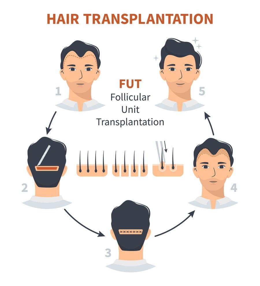 FUT-Haarverpflanzungs-Methode
