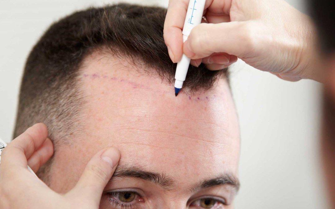 Haartransplantation geheimratsecken kosten türkei