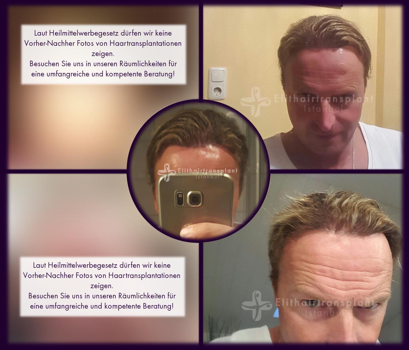 transplante de cabelo antes e depois