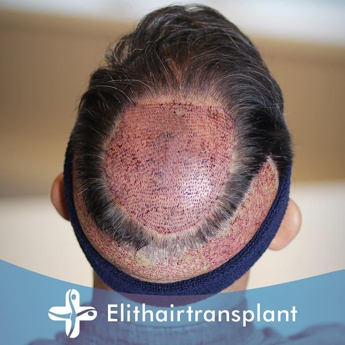 Haartransplantation ohne Rasur - Teilrasur
