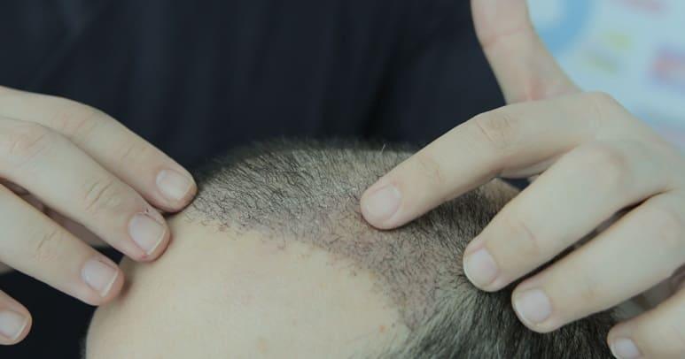 Haartransplantation Grafts - Unsuchung der eingepflamtzten Grafts