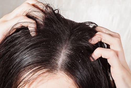 Haare - Probleme mit Schuppen