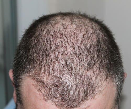 Ursachen von Haarausfall und lichtes Haar bei Männer