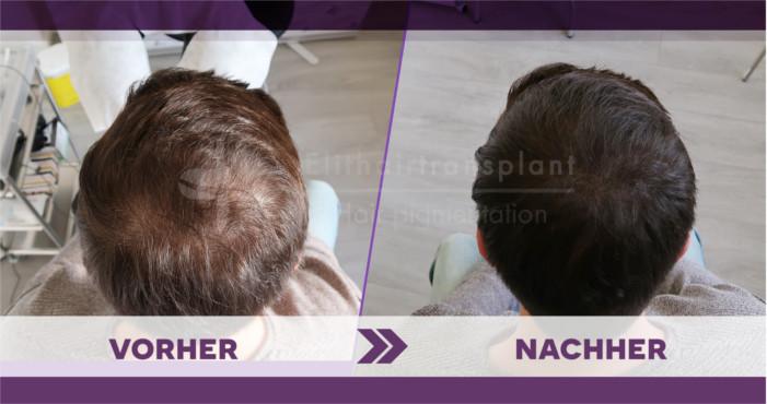 Alternativen der Haartransplantation Haarpigmentierung
