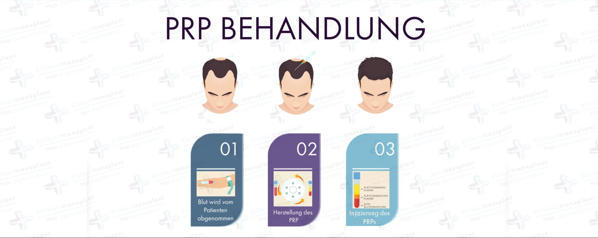 Alternativen der Haartransplantation PRP Behandlung
