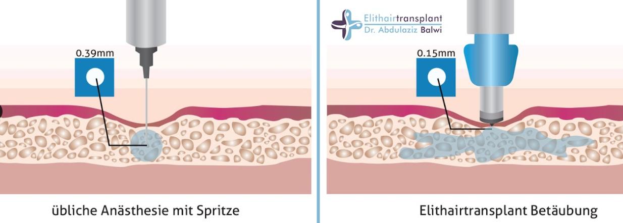 Schmerzen bei einer Haartransplantation Betaeubung