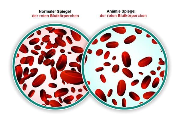 Blutarmut kann eine Ursache bei Haarausfall sein