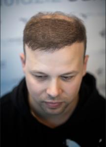 Korrektur einer Haartransplantation