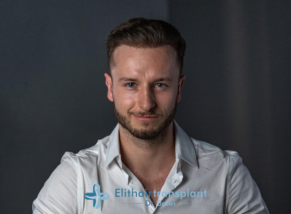 Matt Dominance mit vollem Haar nach seiner Haartransplantation