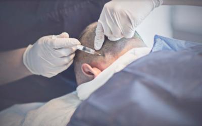 Spenderbereich nach Haartransplantation