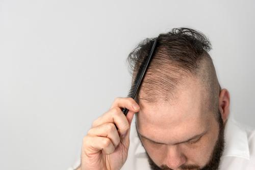 Ursachen von Haarausfall – diffuse Haarausfall bei Männer