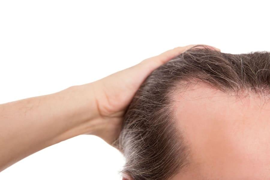 Tipps gegen Haarausfall - anwenden und ausprobieren