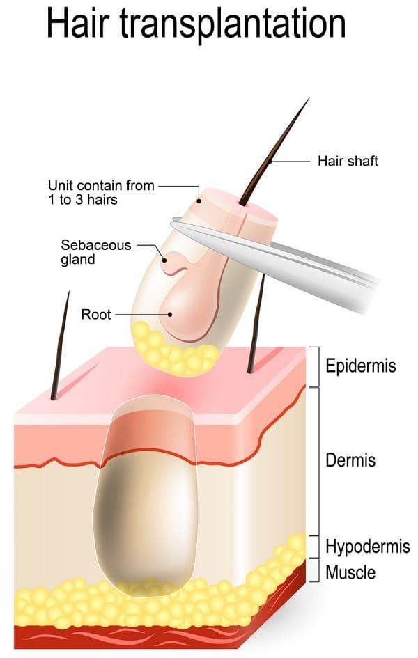Folliculitis Decalvans - kommt Haartransplantation in Frage?