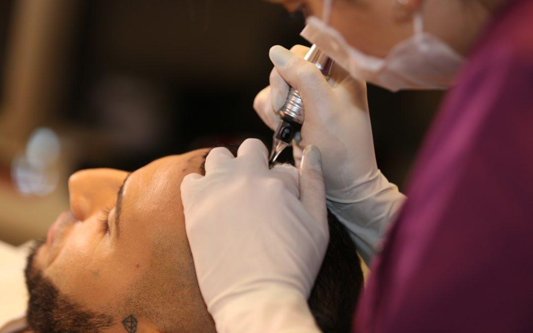 Was hilft bei Haarausfall -Transplantation oder Pigmentierung?