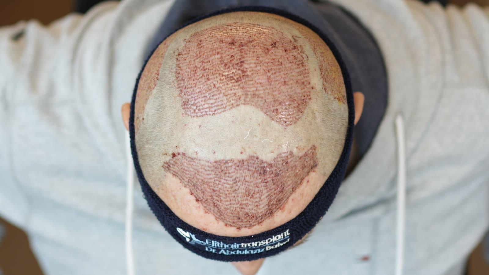 Eine Haartransplantation nach der FUE Methode