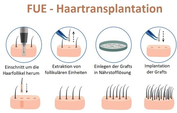 Plantur 21 Erfahrungen - FUE-Haartransplantation