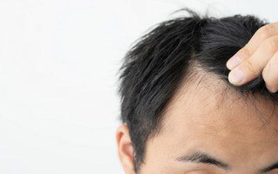 Gibt es positive Plantur 21 Erfahrungen bezüglich Haarverlust?