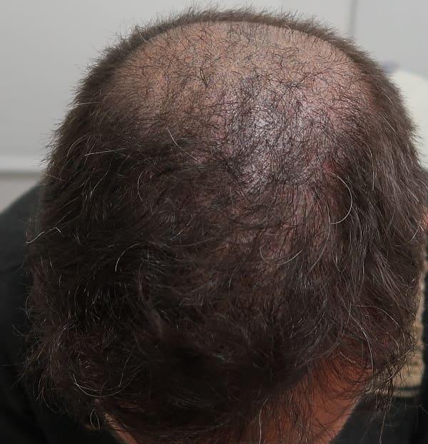 Haartransplantation nach der FUE Methode - Misslungene FUT