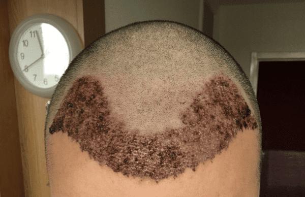 Haartransplantation nach der FUE Methode - was beachtet muss