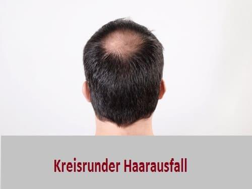 Haartransplantation sinvoll bei kreisrundem Haarausfall