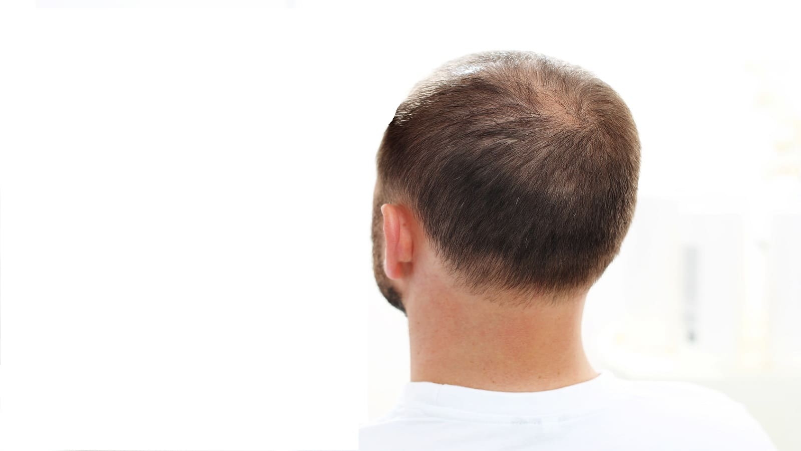 Essen gegen Haarausfall