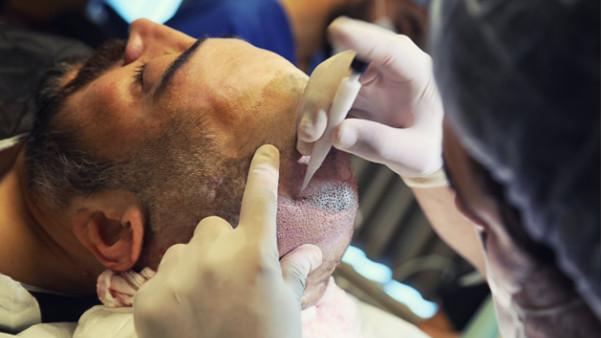 Haarausfall Behandlung DHI
