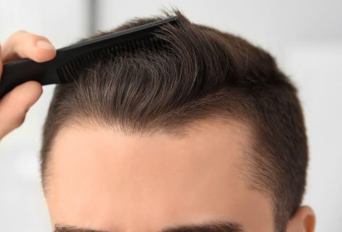 Haartransplantation Planung -Aussehen nach der Haarverpflanzung
