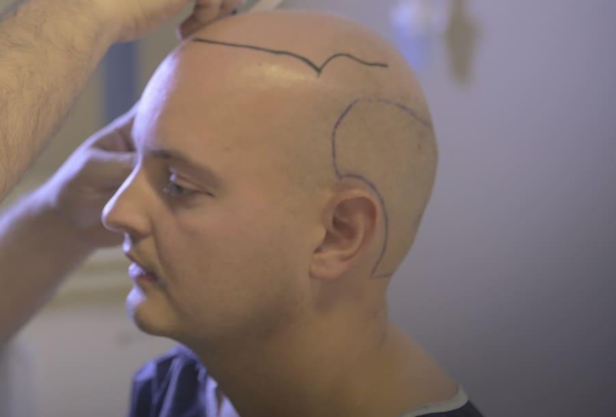 Haartransplantation negative Erfahrung - Eine unnatürlich wirkende Haarlinie