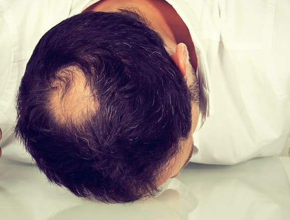 Kreisrunder Haarausfall Männer