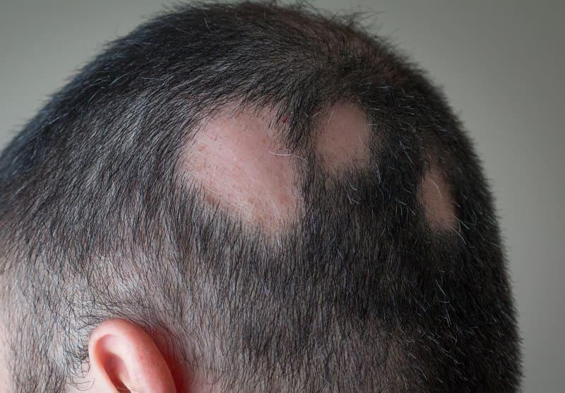 Kreisrunder Haarausfall Ursachen