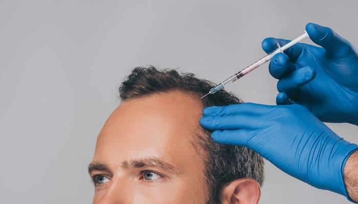 Vorteile einer Mesotherapie gegen Haarausfall