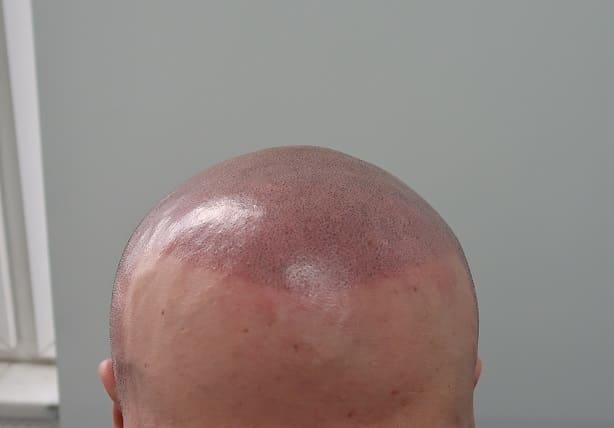 Haartransplantation Glatze