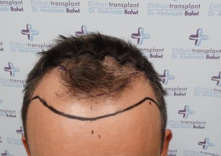Art des Haarausfalls ist Voraussetzung einer Haartransplantation. Vor Behandlung wurde Haarlinie gezeichnet.