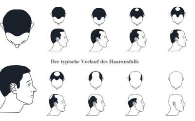 Norwood-Hamilton-Skala: Der typische Verlauf erblich bedingten Haarausfalls