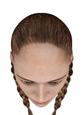 Haartransplantation Türkei
