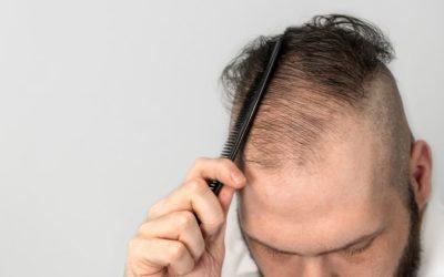 Durch eine Autoimmunerkrankung verursachter Haarausfall
