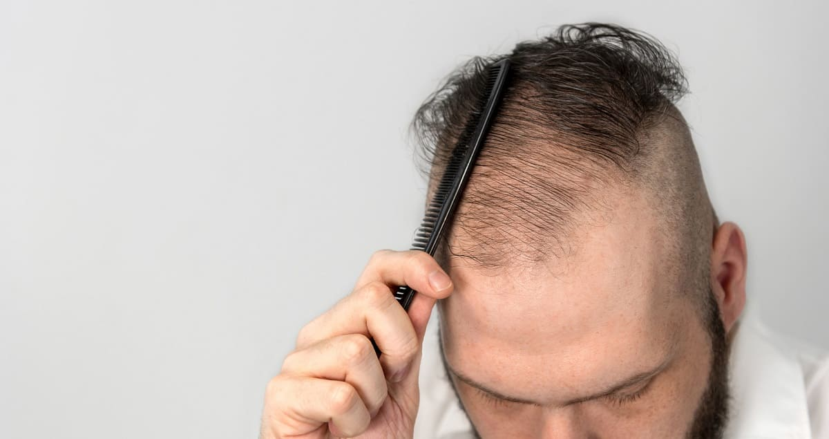 Autoimmunerkrankung Haarausfall – Was kann man dagegen tun