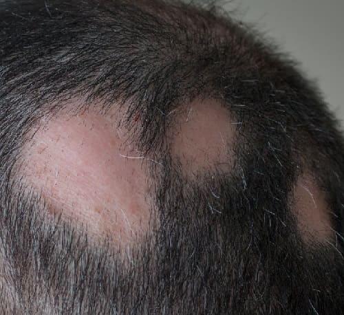 Autoimmunerkrankung mit Haarverlust Alopecia Araeta