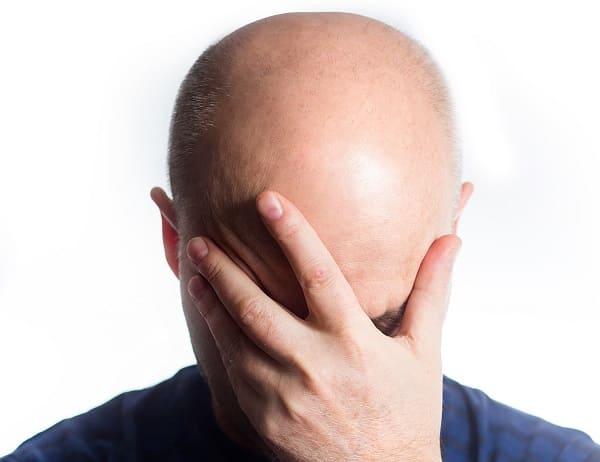 Betroffene leiden sehr unter dem Haarverlust durch eine Chemotherapie